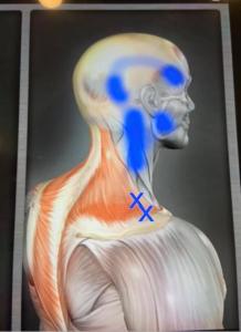 x印が頭痛のトリガーなのだそうです。